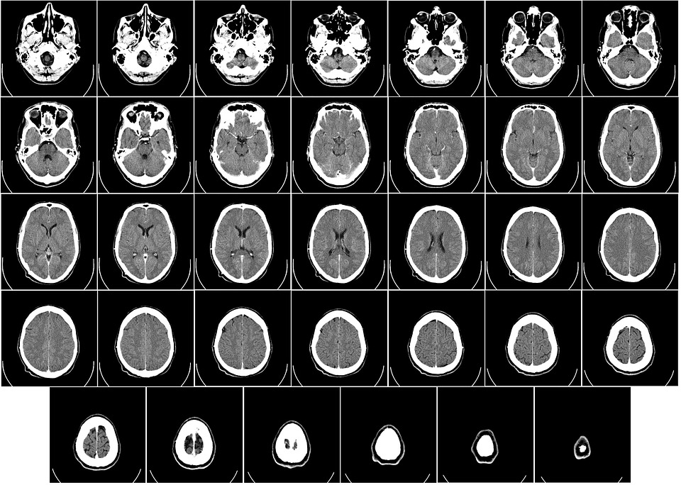 computer-tomography-62942_960_720.jpg
