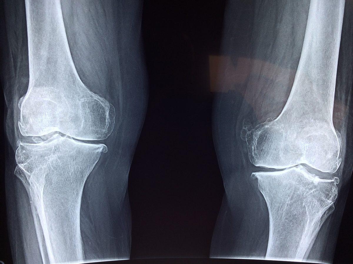 knee-2253047_1280-1200x900.jpg